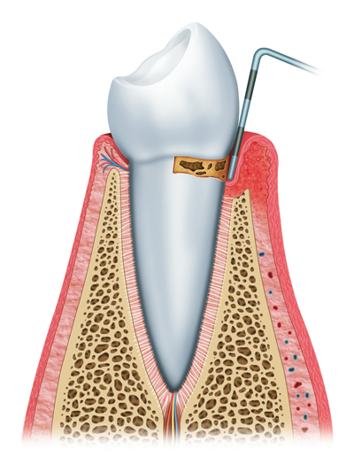 Stages of Gum Disease Clifton Park, NY